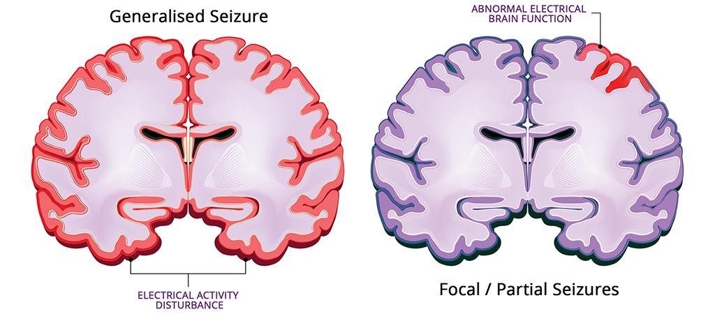 What is a seizure?