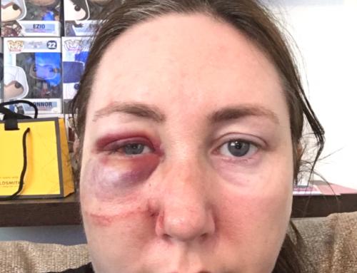 My Epilepsy Journey – Michelle Hackett