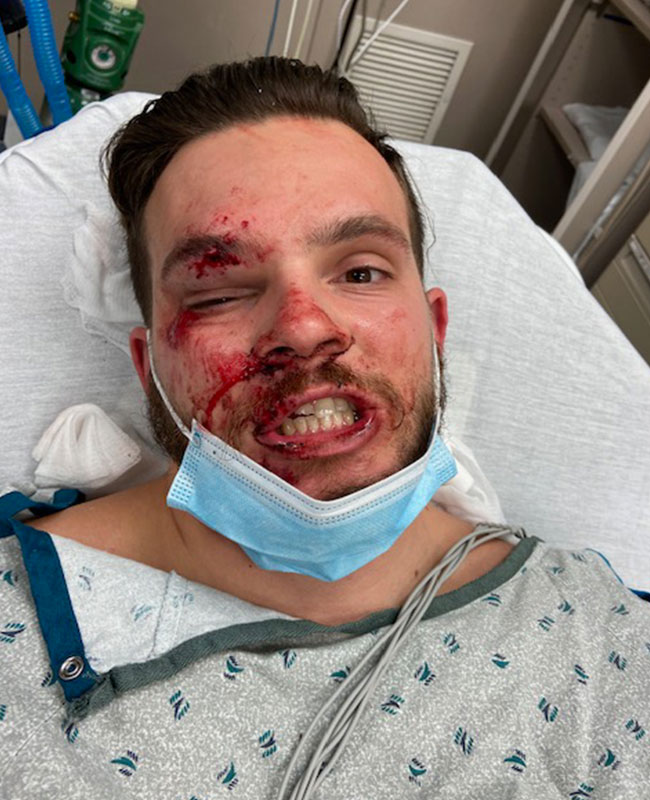 epilepsy story jackson kissel