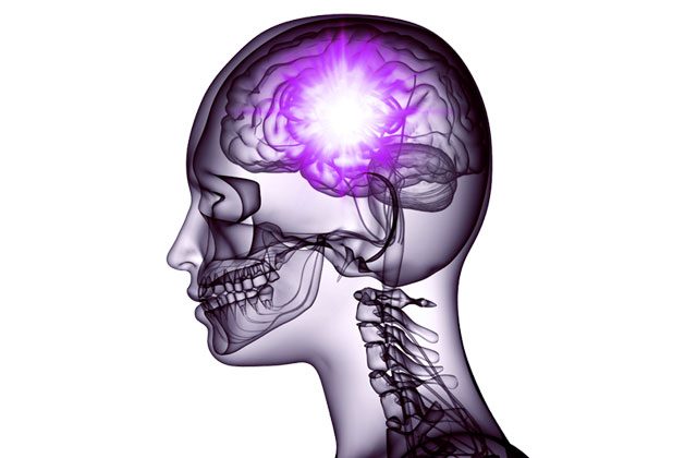 What is Epilepsy? Image of a person's brain having complex partial seizures