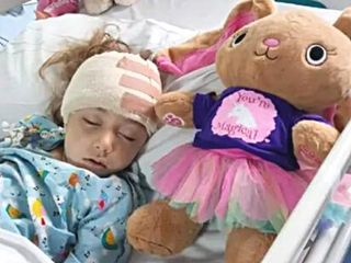 Child with a head injury due to an epileptic episode