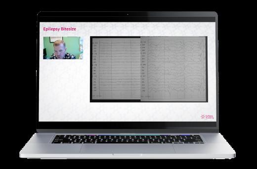 free epilepsy academy course